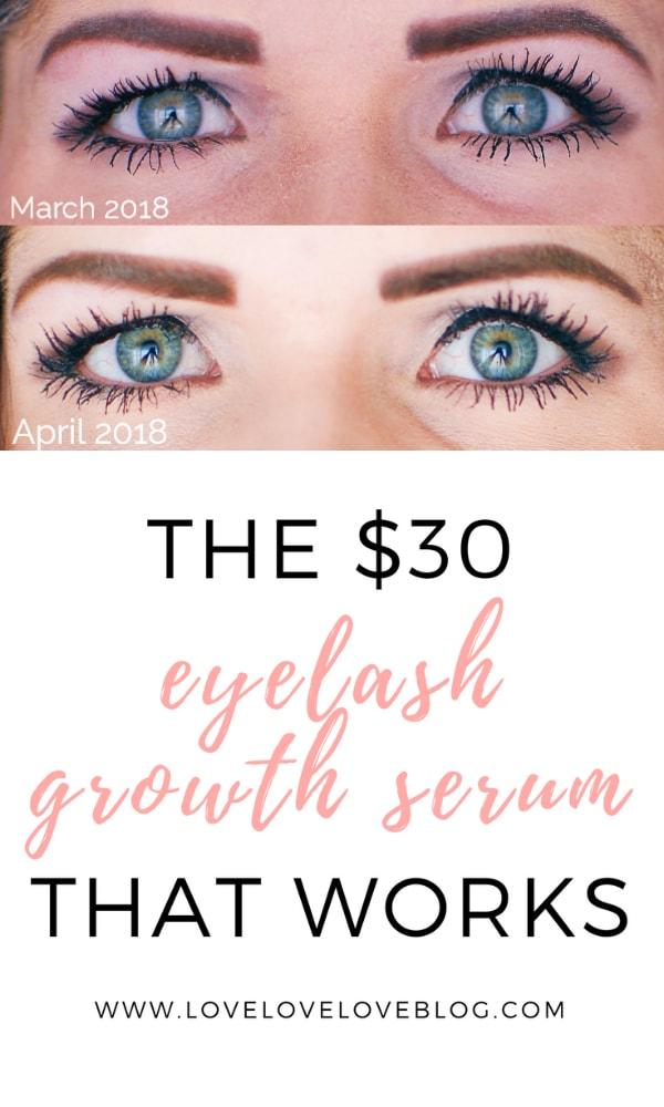The eyelash growth serum that works