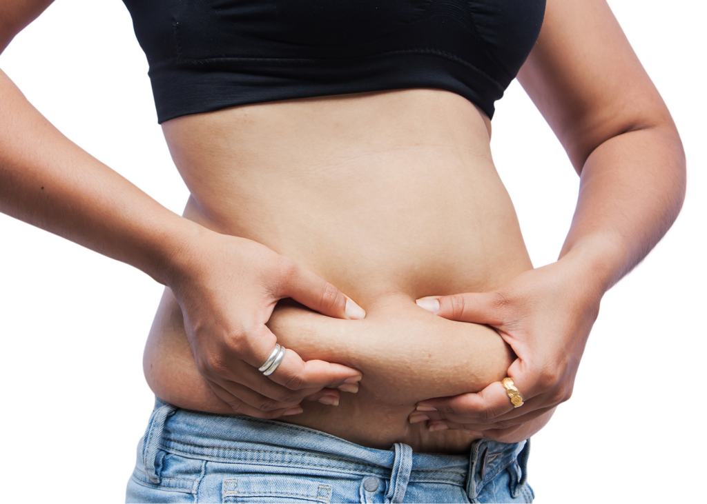 Woman pinches loose belly skin postpartum.