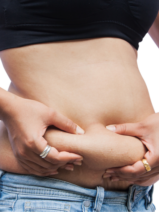 Woman holds loose belly skin postpartum.